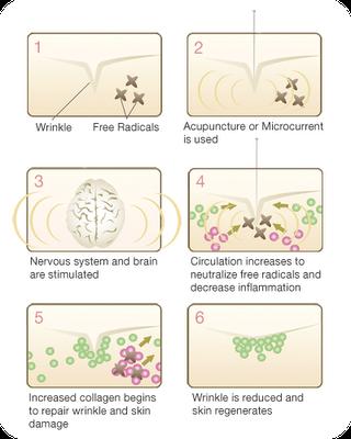Diagrams of acupuncture facial rejuvenation