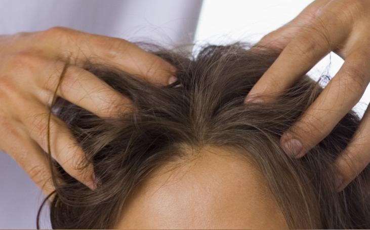 Phototake photo of scalp psoriasis at hairline